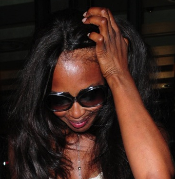 causes for permanent hair loss in black women