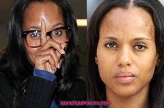 kerry-washington-reveals-signs-of-hyperpigmentation-and-talks-makeup